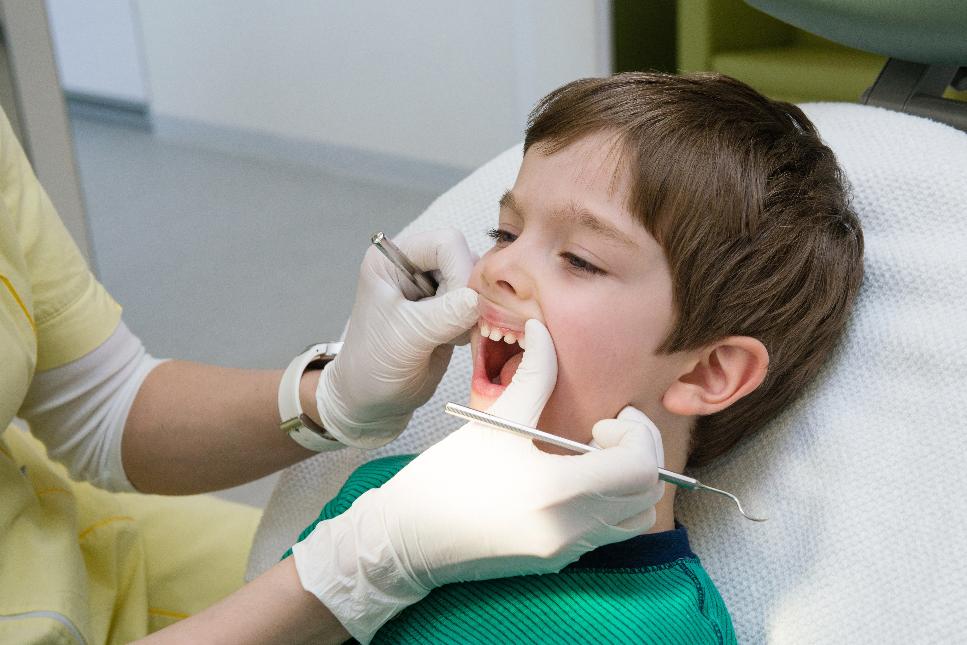 درمان خانگی با فلوراید وارنیش دندان کودکان