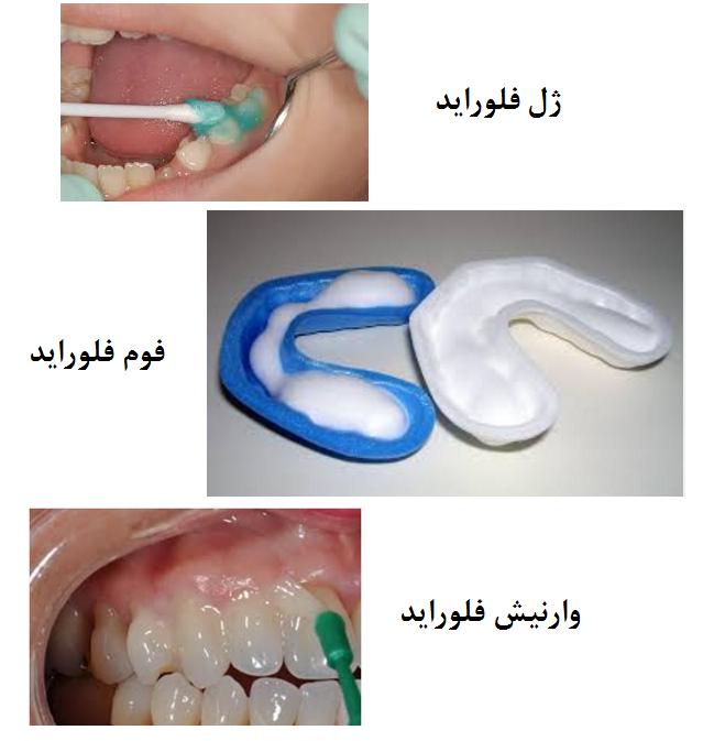 فلوراید موضعی روی دندان
