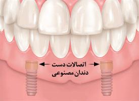 ایمپلنت نگه دارنده دست دندان مصنوعی کامل