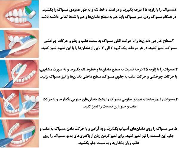10-1 نامرتبی، بینظمی، به هم ریختگی و شلوغی دندانها