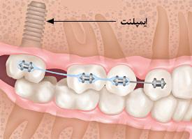 ایمپلنت لنگرگاهی برای حرکت دندانها در ارتودنسی