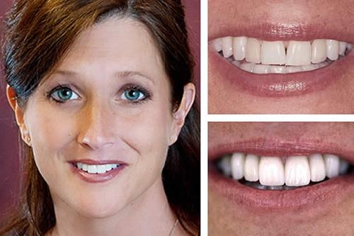 17-2 راه و روشهای سفید کردن و بلیچینگ دندان؛ عوارض و هزینه