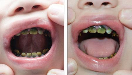 1-2 روشهای از بین بردن فاصله بین دندانها