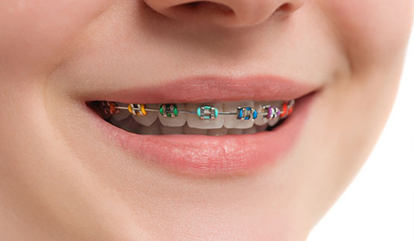 ارتودنسی ثابت دندان