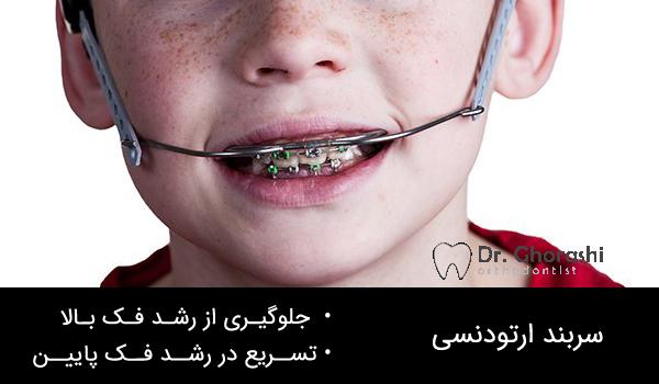 سربند در ارتودنسی دندان