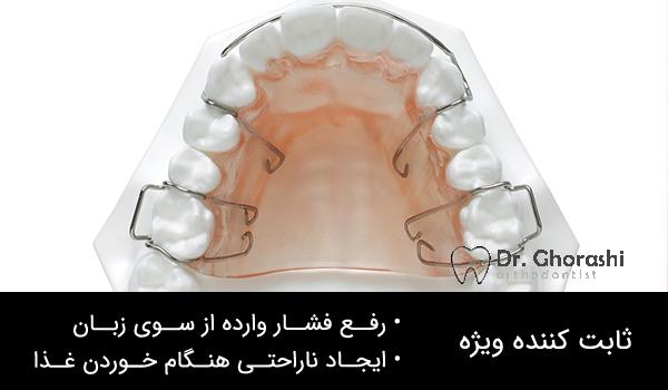 ابزار در ارتودنسی دندان