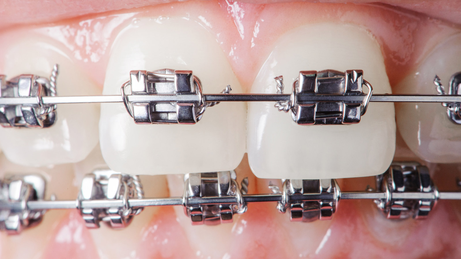 سم کشی دندان ها