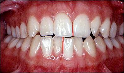 جا به جایی دندان ها