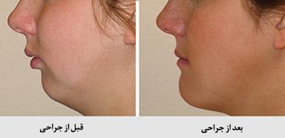 سایر درمانهای ارتودنسی کردن دندان ها