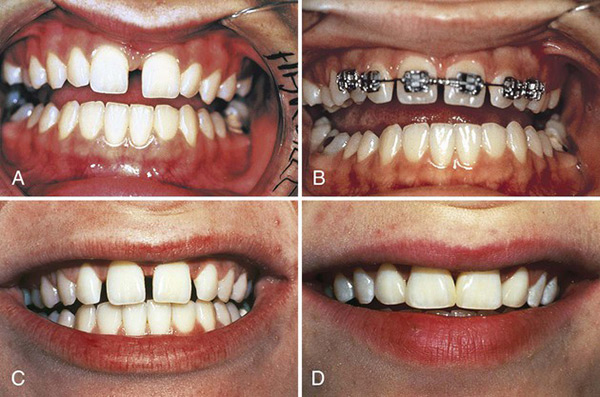 ارتودنسی دندان فاصله دار