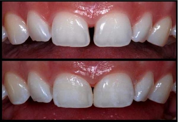 بستن فاصله دندان با کامپوزیت