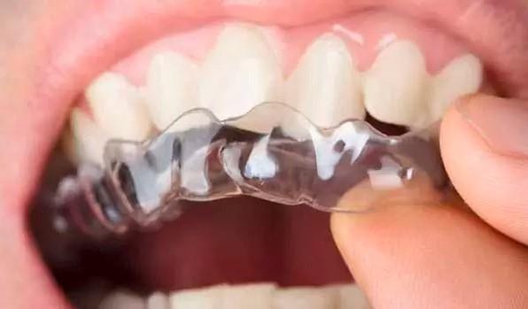 ارتودنسی بدون سیم ارتودنسی نامرئی در شیراز بهترین دندانپزشک شیراز