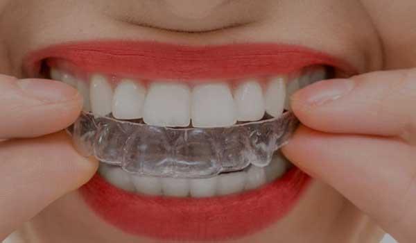 ارتودنسی نامرئی دندانپزشک شیراز ارتودنسی در مشهد