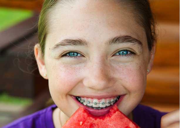 تغذیه در حین درمان ارتودنسی