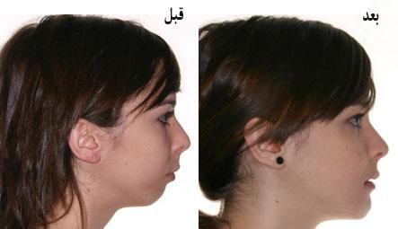 خطرات مرتبط با جراحی ارتوگناتیک