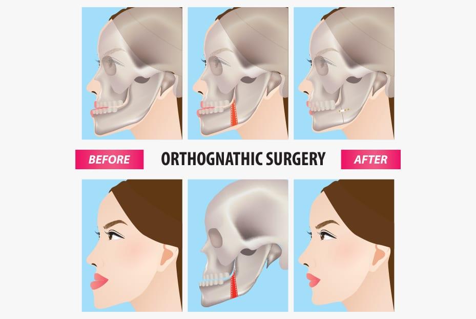 جراحی ارتوگناتیک