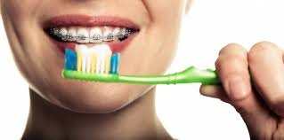 تاثیر بهداشت دهان در مدت زمان ارتودنسی