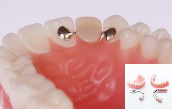 کاشت دندان نیمه مصنوعی یا پارسیل