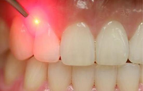 کاشت دندان با لیزر