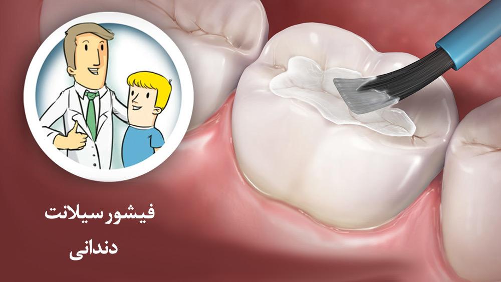 شیارپوش دندان چیست