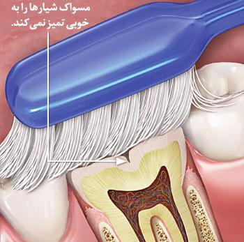 دلیل استفاده از شیارپوش برای دندان های عقبی
