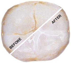 قبل و بعد شیاربندی دندان