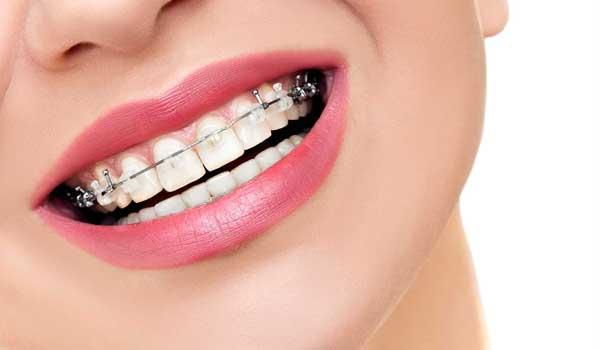 مراحل ارتودنسی مراحل ارتودنسی به ترتیب مراحل ارتودنسی مراحل ارتودنسی دندان مراحل ارتودنسی دندان با عکس