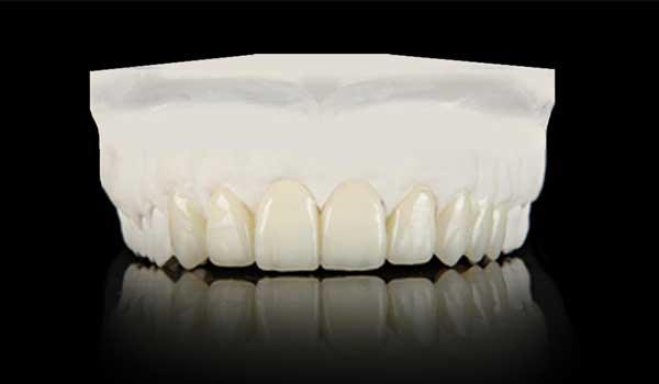 مراحل ارتودنسی دندان مراحل ارتودنسی ثابت عکس مراحل ارتودنسی ثابت مراحل انجام ارتودنسی
