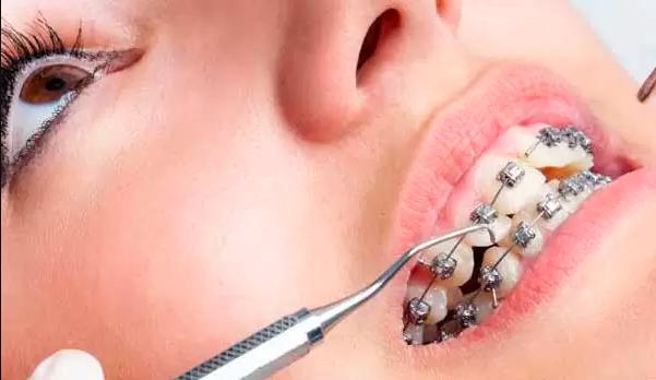 مراحل ارتودنسی ثابت معاینه دندان قیمت عکس opg دندان ارتودنسی نیم فک چیست مراحل ارتودنسی