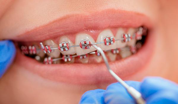 صاف شدن دندان ها چه مدت طول می کشد