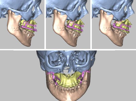 روشهای درمان ارتوگناتیک: جراحی فک بالا