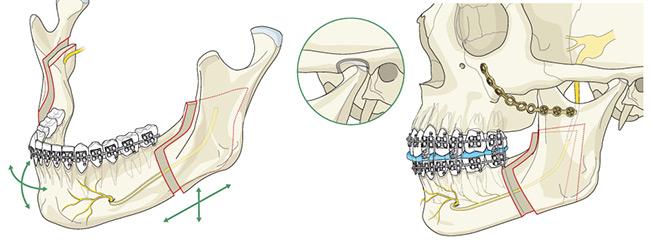 روشهای جراحی ارتوگناتیک: جراحی فک پایین