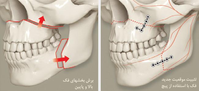 جراحی استئوتومی هر دو فک