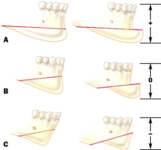 جراحی جنیوپلاستی (جراحی چانه)