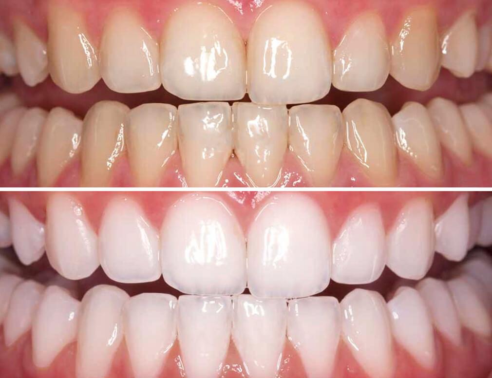 تفاوت سفید کردن دندان و بلچینگ