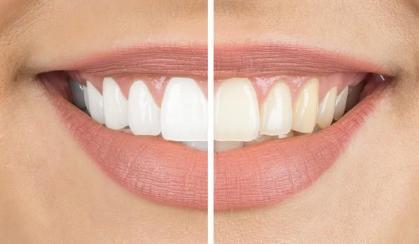 ارتودنسی و سفید کردن دندان