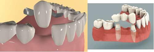 بریج دندانی چیست؟