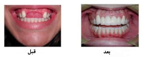 قبل و بعد از بریج دندان