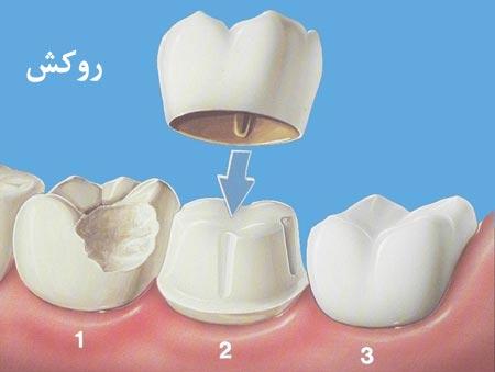روشهای درمان حساسیت دندانی