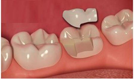 تیر کشیدن دندان های حساس