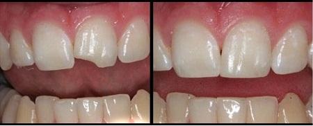 علائم حساسیت دندانی