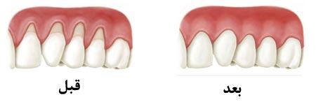 حساسیت دندان های کودکان