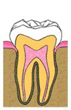 آبسه پریاپیکال اطراف سر یا نوک ریشه دندان