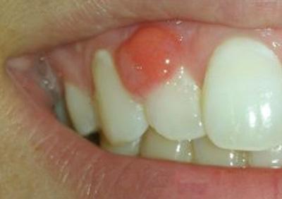 آبسه اطراف دندان