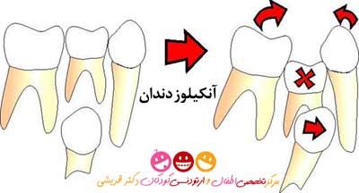 آنکیلوز دندان