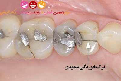 ترک خوردگی دندان کودک
