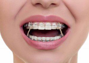 برگشت دندان بعد از ارتودنسی