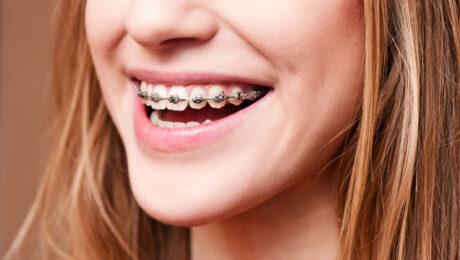 ارتودنسی بهتر است یا لمینت دندان