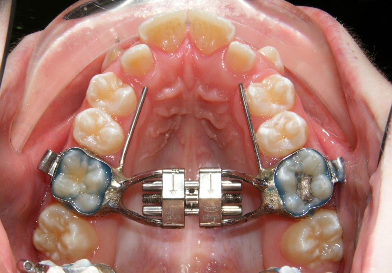 بهداشت دهان در مدت استفاده از وسیع کننده