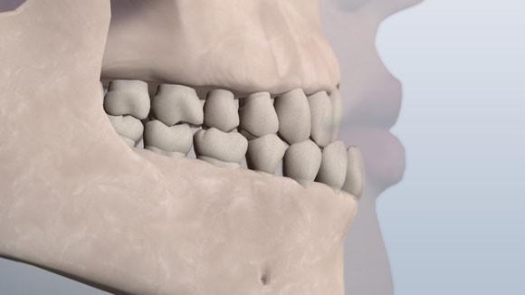 مال اکلوژن کلاس 3 دندانی